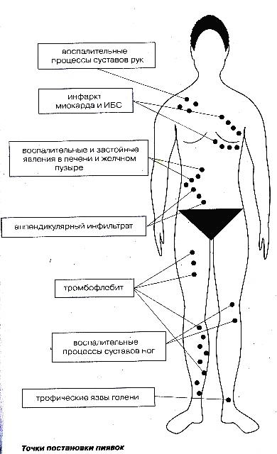 Можно ставить прививку от гепатита а при гепатите б