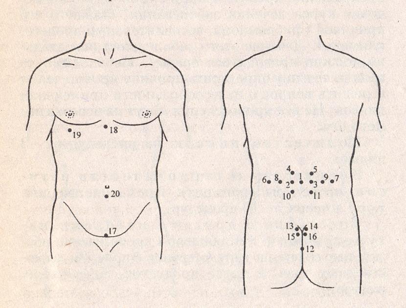 Схема Формы Псориаз