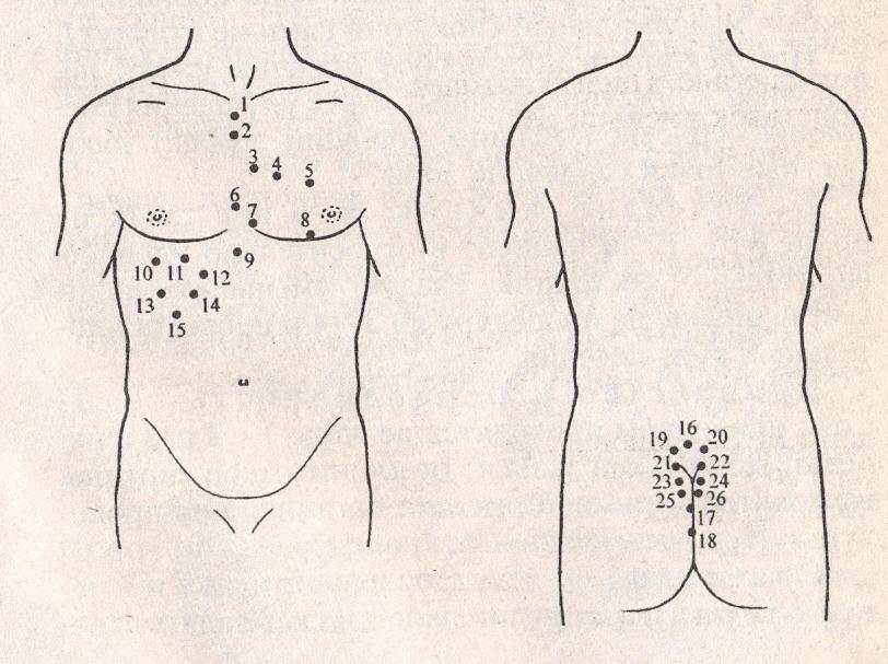 Пиявки при эндометриозе куда ставят